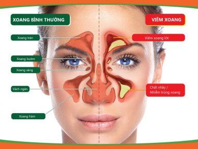 Đau nửa đầu và đau đầu do viêm xoang hoàn toàn khác nhau cả về nguyên nhân và hướng điều trị