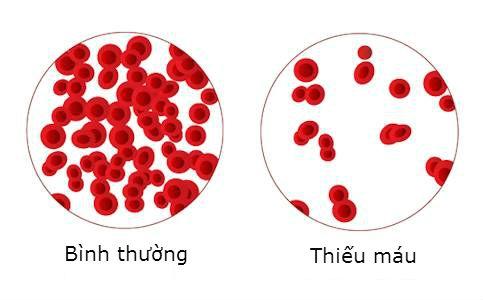thieu-mau-thieu-sat-va-nhung-thoi-quen-giup-day-lui-tinh-trang-benh-1